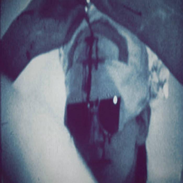 Sounding – Trepanation